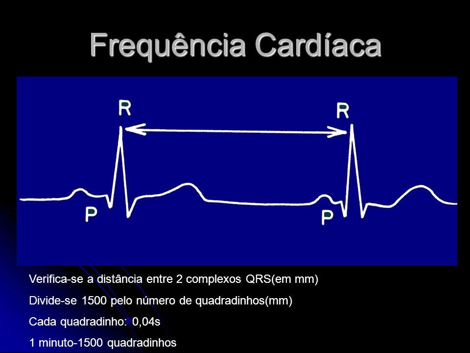 Frequência CardíacaVerifica-se a distância entre 2 complexos QRS(em mm) Divide-se 1500 pelo número de quadradinhos(mm)