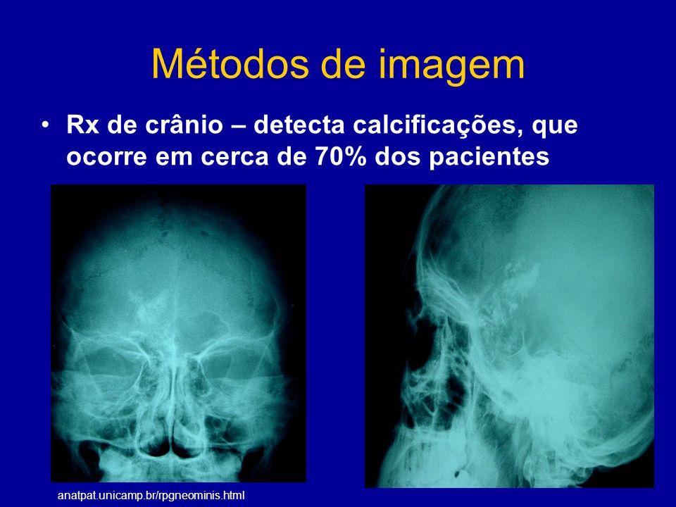 Métodos de imagem Rx de crânio – detecta calcificações, que ocorre em cerca de 70% dos pacientes.