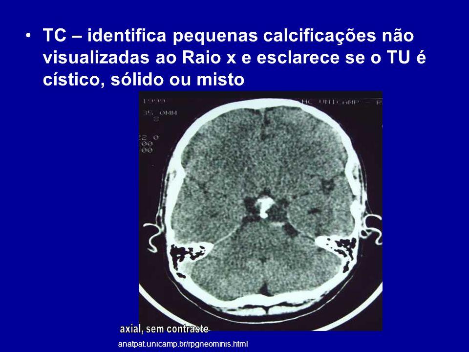 TC – identifica pequenas calcificações não visualizadas ao Raio x e esclarece se o TU é cístico, sólido ou misto