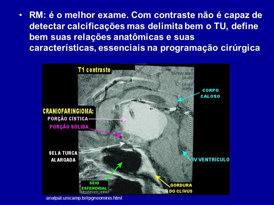 RM: é o melhor exame. Com contraste não é capaz de detectar calcificações mas delimita bem o TU, define bem suas relações anatômicas e suas características, essenciais na programação cirúrgica