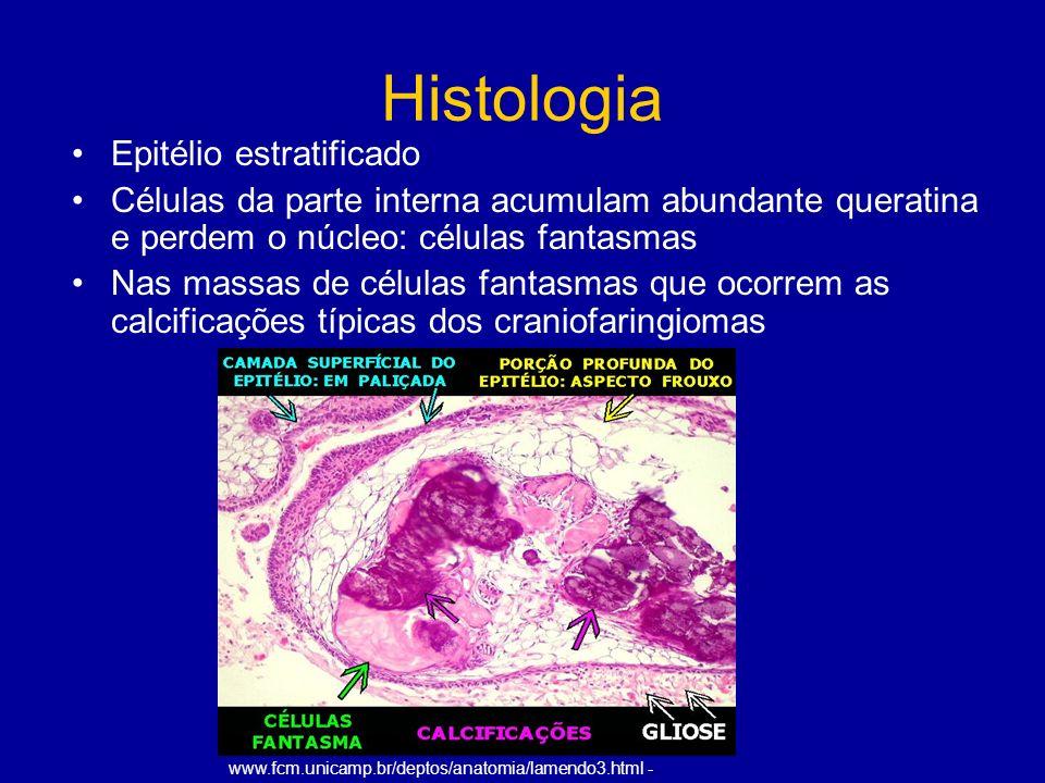 Histologia Epitélio estratificado