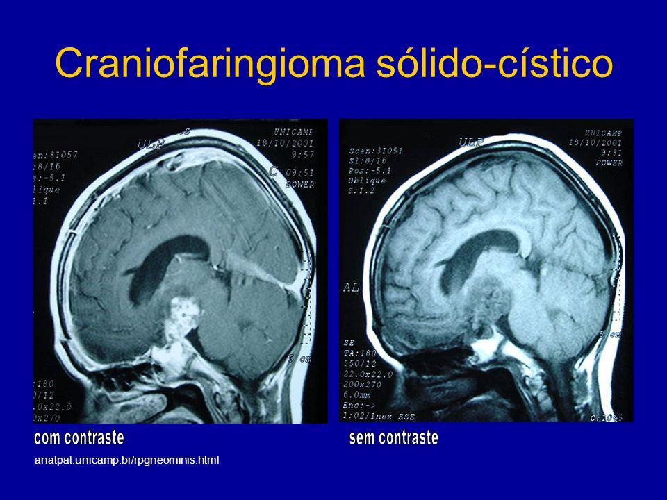 Craniofaringioma sólido-cístico