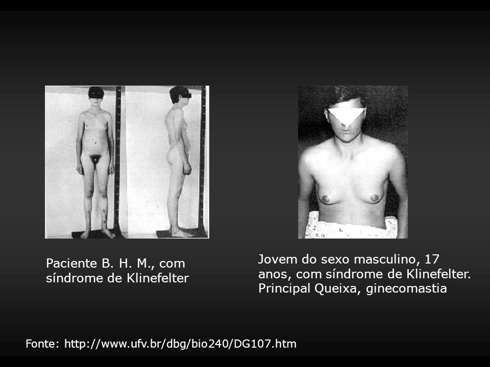 Paciente B. H. M., com síndrome de Klinefelter
