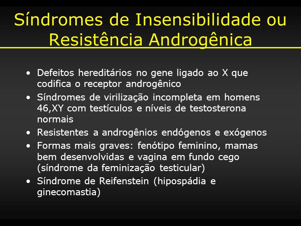 Síndromes de Insensibilidade ou Resistência Androgênica