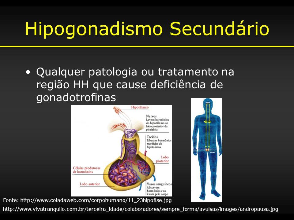 Hipogonadismo Secundário
