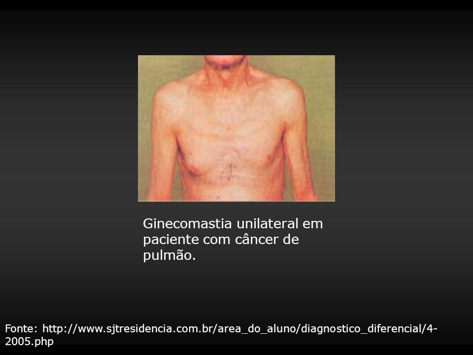 Ginecomastia unilateral em paciente com câncer de pulmão.