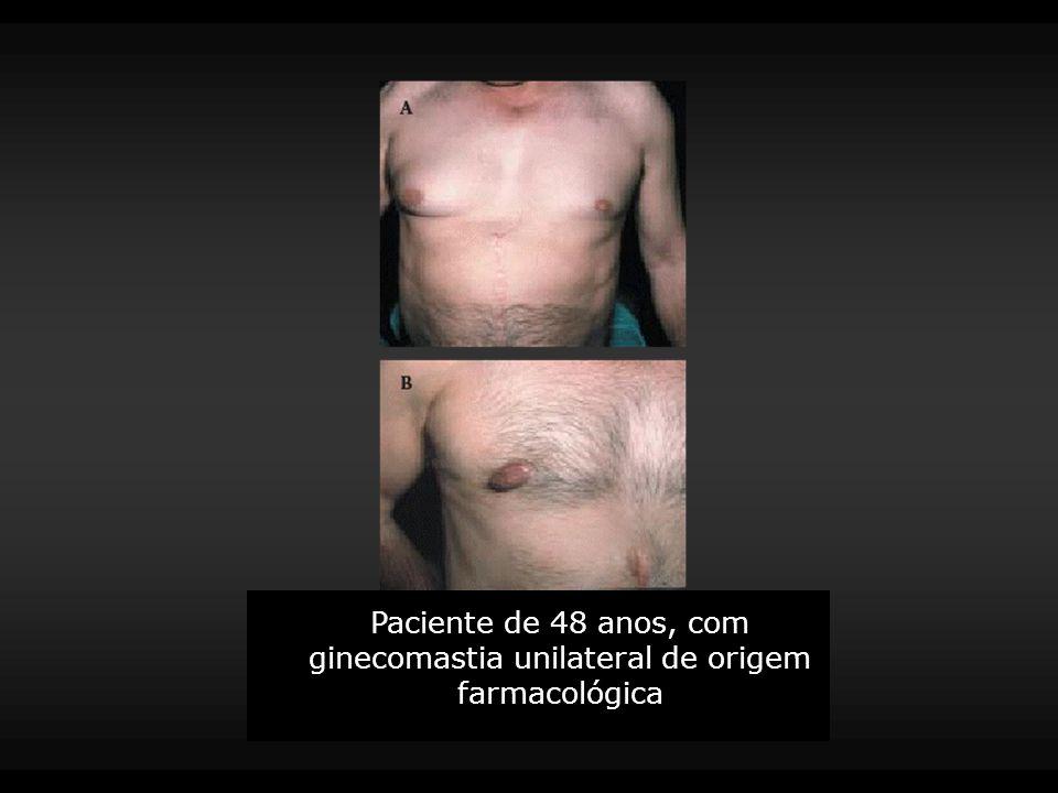 Paciente de 48 anos, com ginecomastia unilateral de origem farmacológica