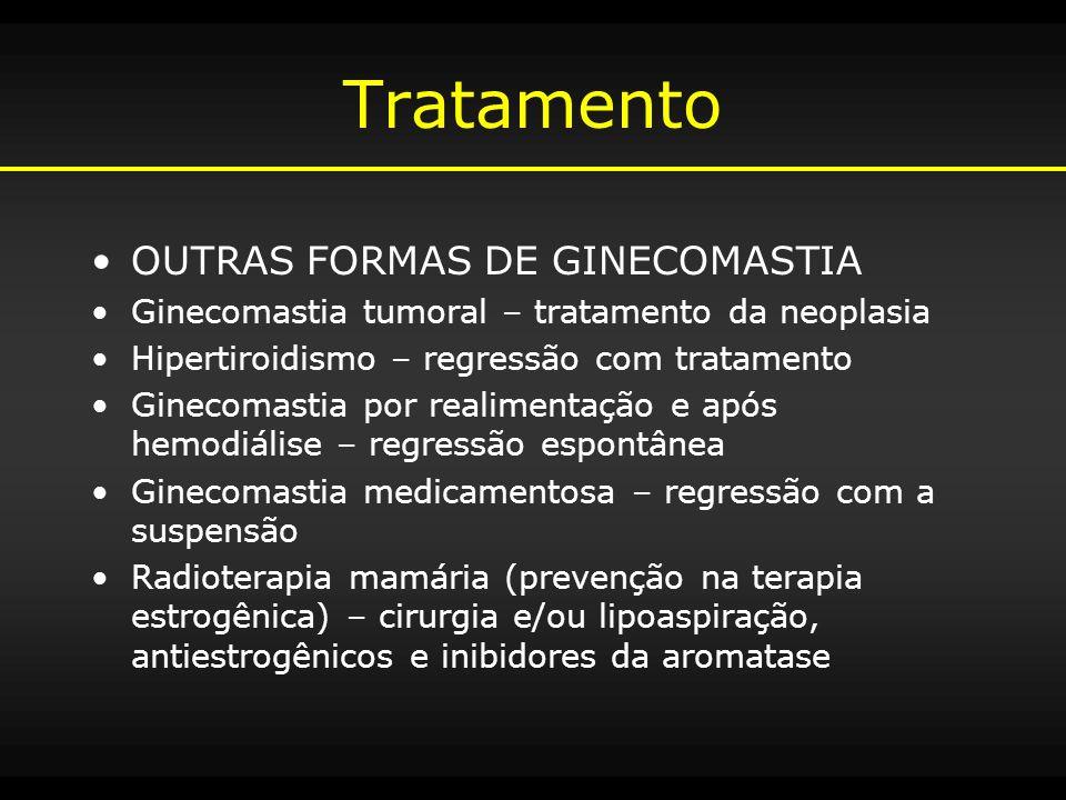 Tratamento OUTRAS FORMAS DE GINECOMASTIA