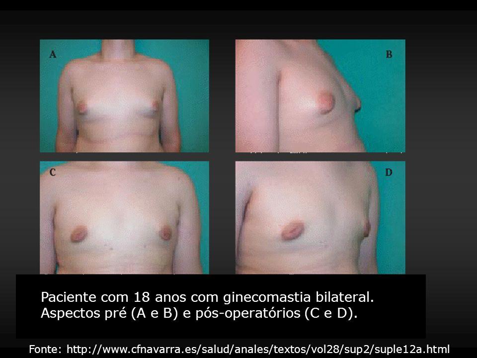 Paciente com 18 anos com ginecomastia bilateral