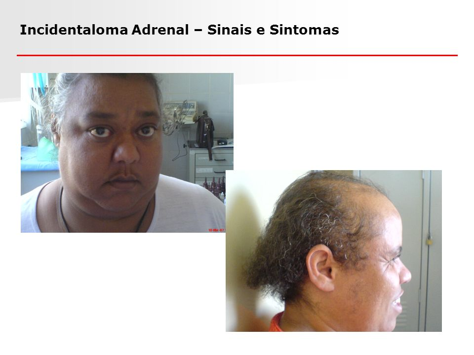 Incidentaloma Adrenal – Sinais e Sintomas