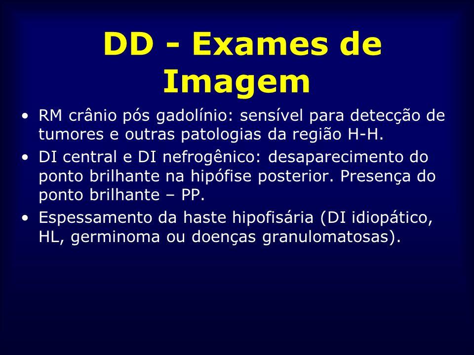DD - Exames de Imagem RM crânio pós gadolínio: sensível para detecção de tumores e outras patologias da região H-H.