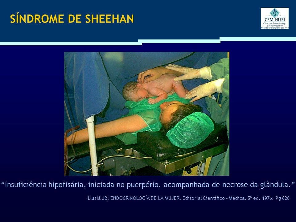 SÍNDROME DE SHEEHAN Insuficiência hipofisária, iniciada no puerpério, acompanhada de necrose da glândula.