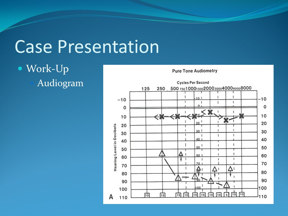 Case Presentation Work-Up Audiogram