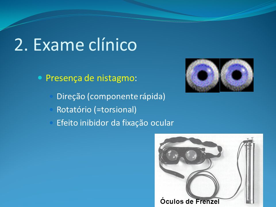 2. Exame clínico Presença de nistagmo: Direção (componente rápida)