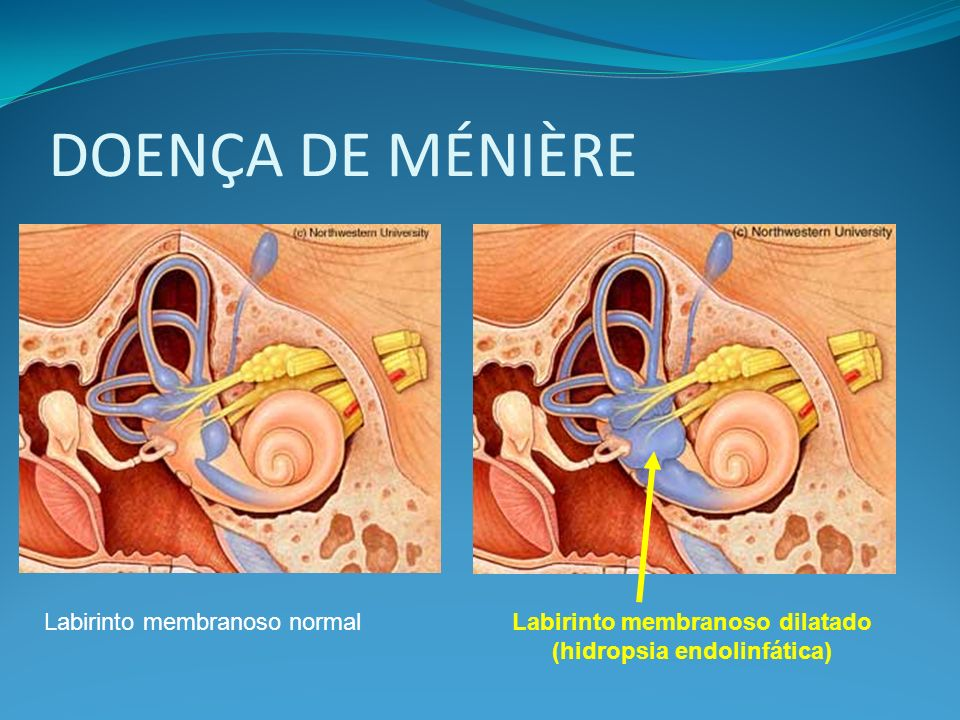 Labirinto membranoso dilatado (hidropsia endolinfática)