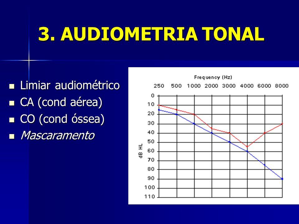 3. AUDIOMETRIA TONAL Limiar audiométrico CA (cond aérea)