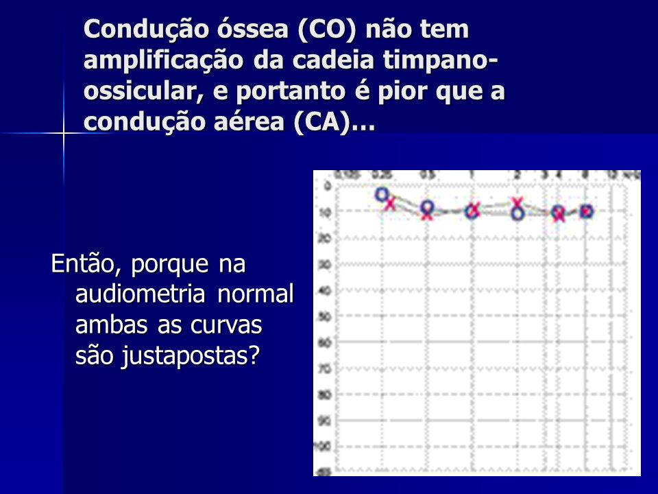 Condução óssea (CO) não tem amplificação da cadeia timpano-ossicular, e portanto é pior que a condução aérea (CA)…