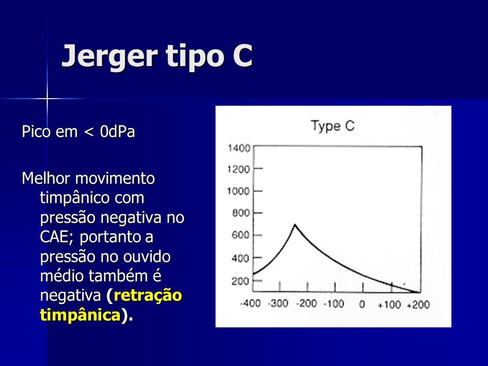 Jerger tipo C Pico em < 0dPa