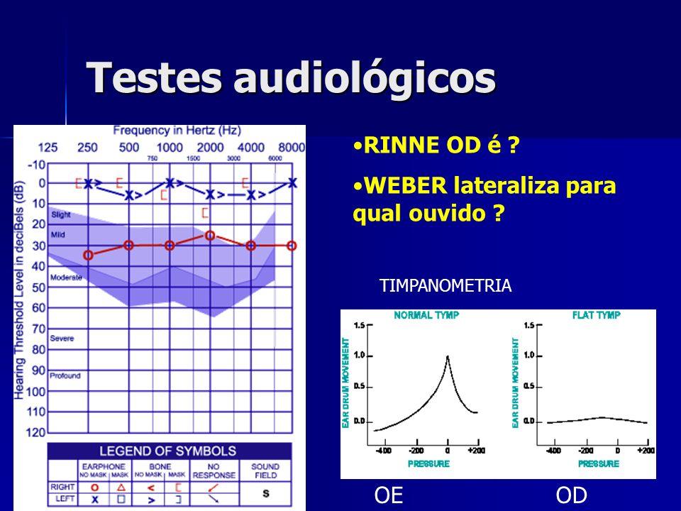 Testes audiológicos RINNE OD é WEBER lateraliza para qual ouvido