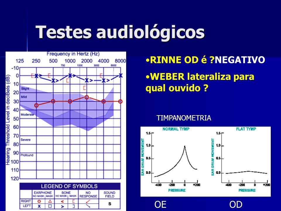 Testes audiológicos RINNE OD é NEGATIVO