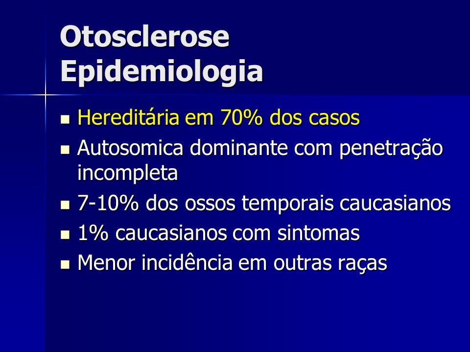 Otosclerose Epidemiologia