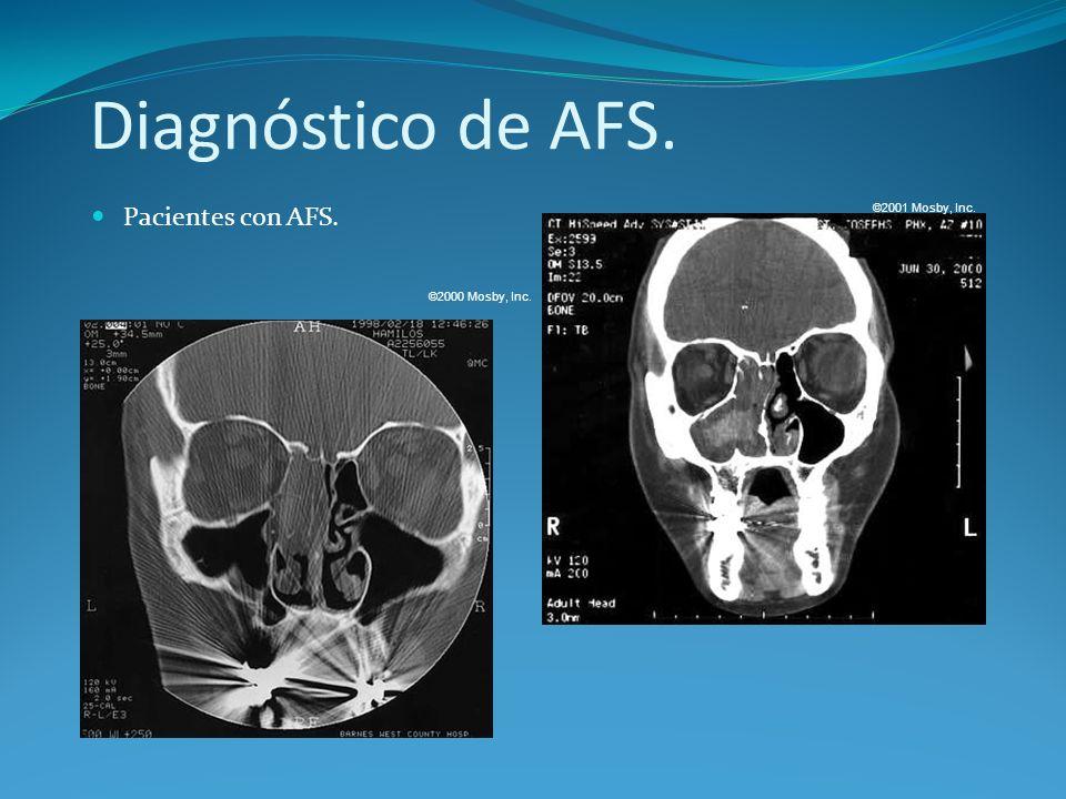 Diagnóstico de AFS. Pacientes con AFS. ©2001 Mosby, Inc.
