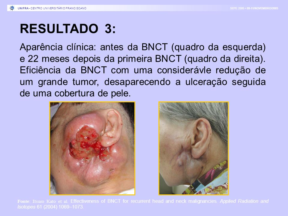 UNIFRA • CENTRO UNIVERSITÁRIO FRANCISCANO SEPE 2005 • 09-11/NOVEMBRO/2005