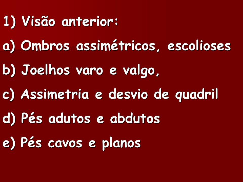 1) Visão anterior: a) Ombros assimétricos, escolioses. b) Joelhos varo e valgo, c) Assimetria e desvio de quadril.