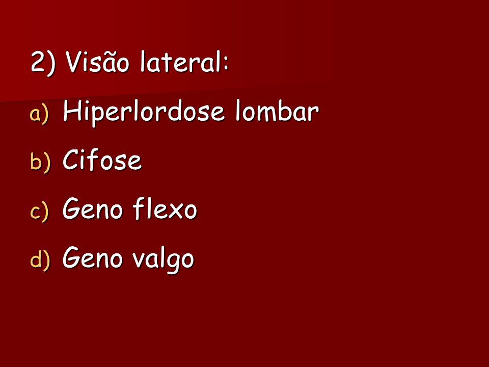 2) Visão lateral: Hiperlordose lombar Cifose Geno flexo Geno valgo