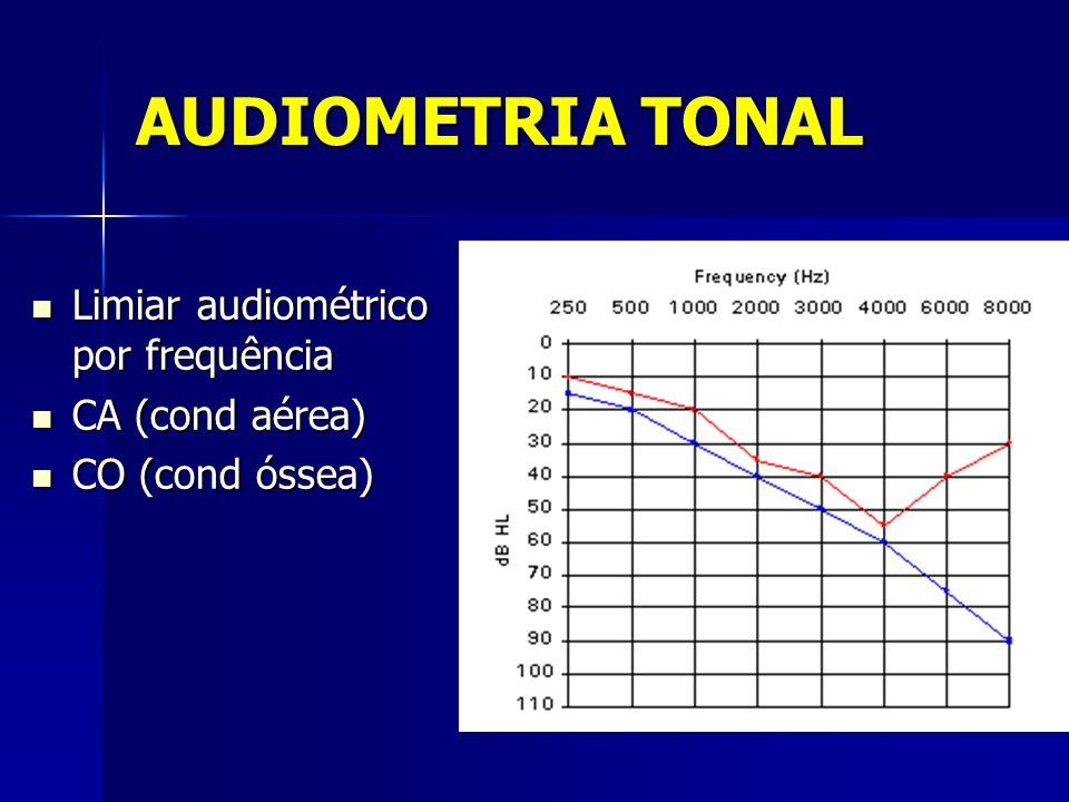 AUDIOMETRIA TONAL Limiar audiométrico por frequência CA (cond aérea)