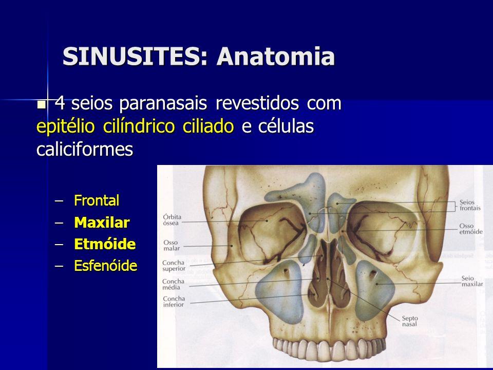 SINUSITES: Anatomia 4 seios paranasais revestidos com epitélio cilíndrico ciliado e células caliciformes.