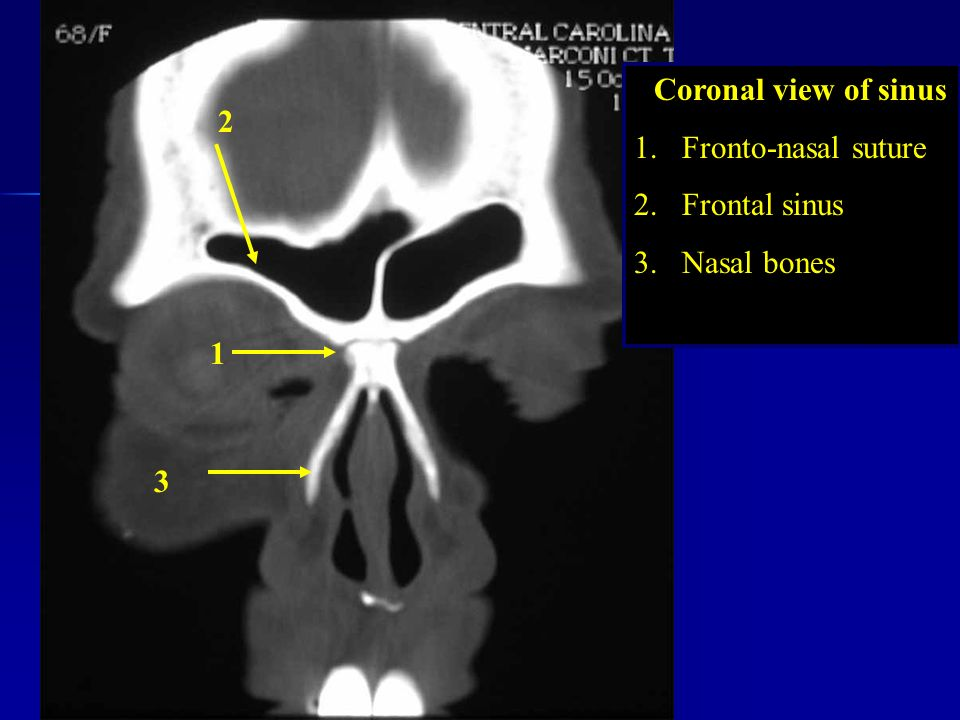 Coronal view of sinus Fronto-nasal suture Frontal sinus Nasal bones 2 1 3