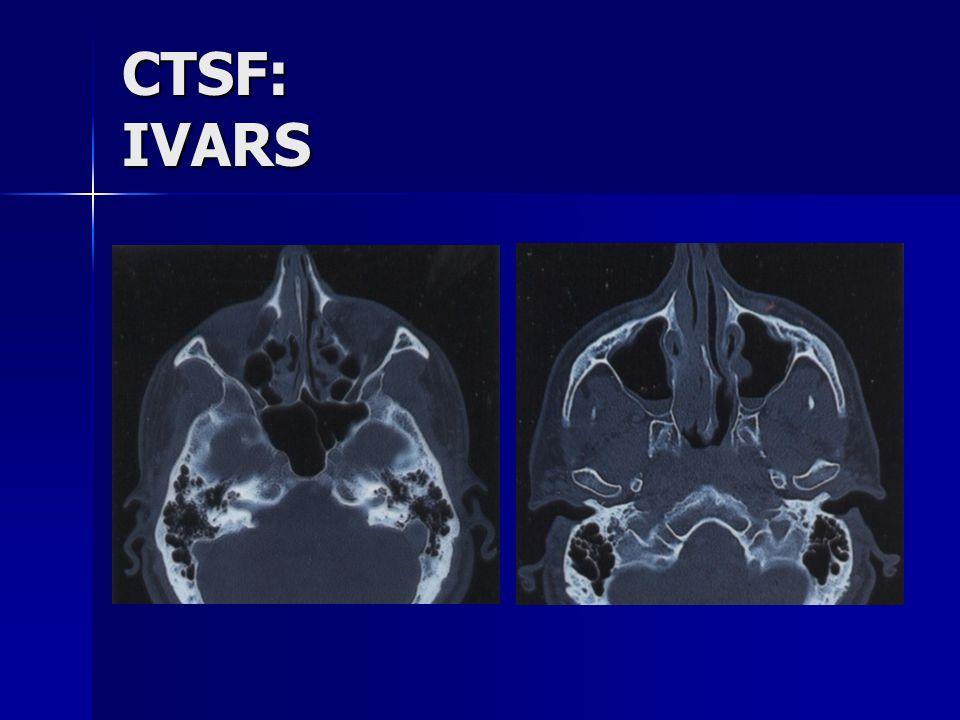 CTSF: IVARS