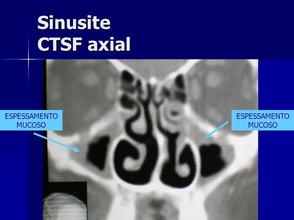 Sinusite CTSF axial ESPESSAMENTO MUCOSO ESPESSAMENTO MUCOSO