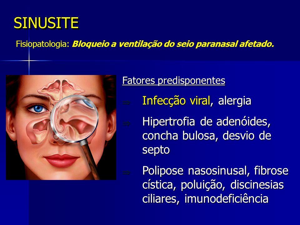 SINUSITE Infecção viral, alergia