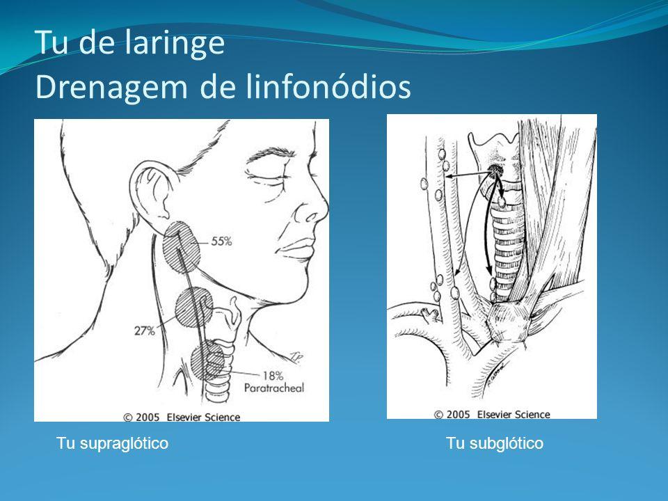 Tu de laringe Drenagem de linfonódios