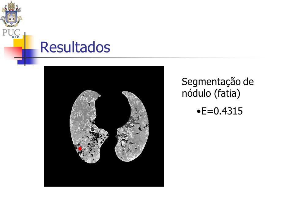 Resultados Segmentação de nódulo (fatia) E=0.4315