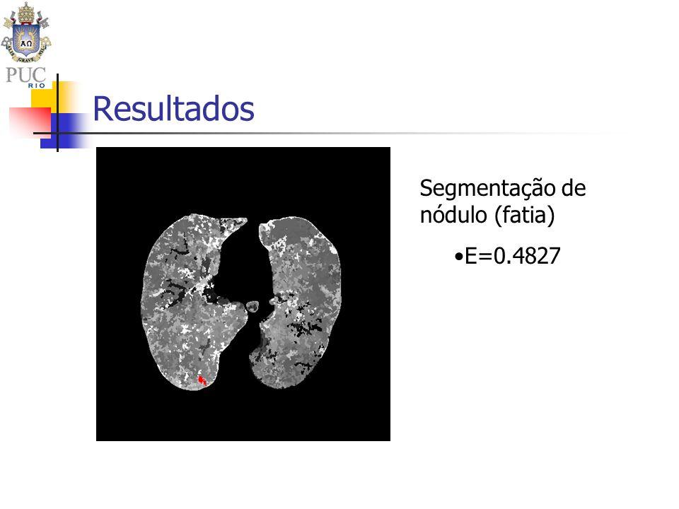 Resultados Segmentação de nódulo (fatia) E=0.4827