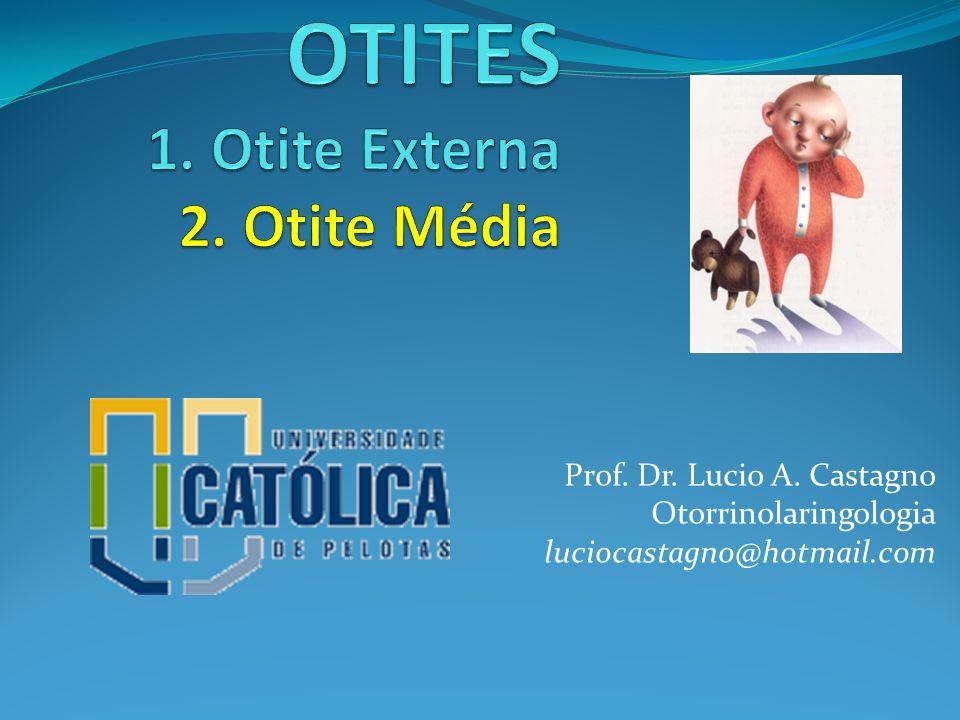 OTITES 1. Otite Externa 2. Otite Média