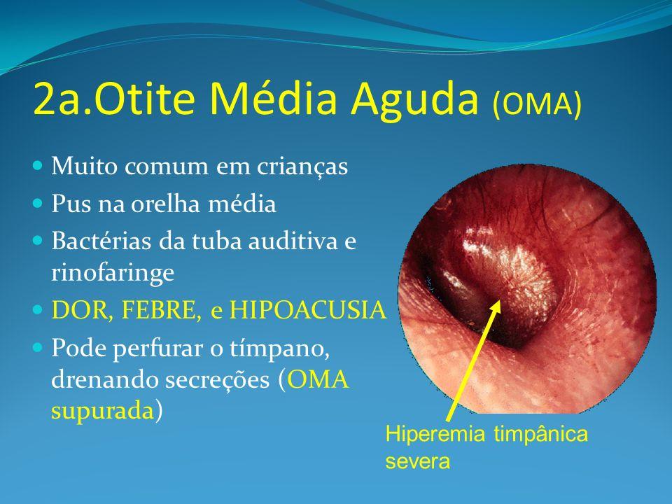 2a.Otite Média Aguda (OMA)