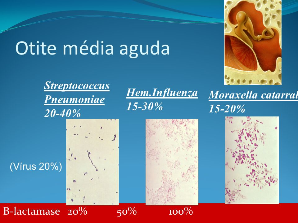 Otite média aguda Streptococcus Pneumoniae 20-40% Hem.Influenza 15-30%