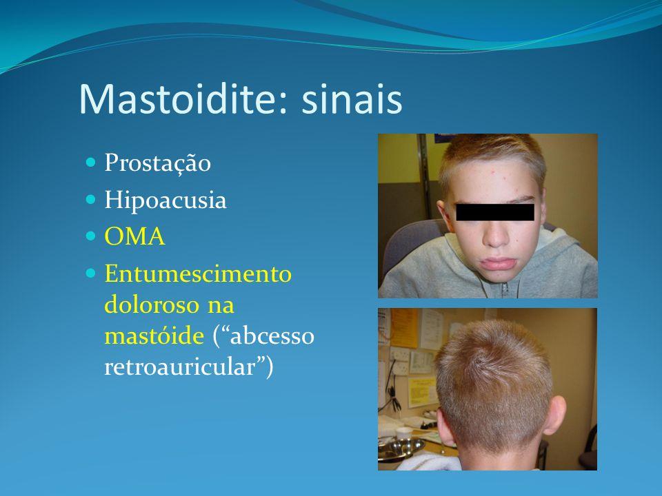 Mastoidite: sinais Prostação Hipoacusia OMA