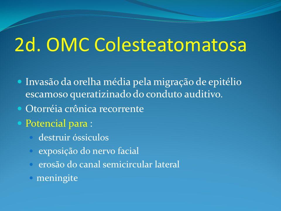 2d. OMC Colesteatomatosa