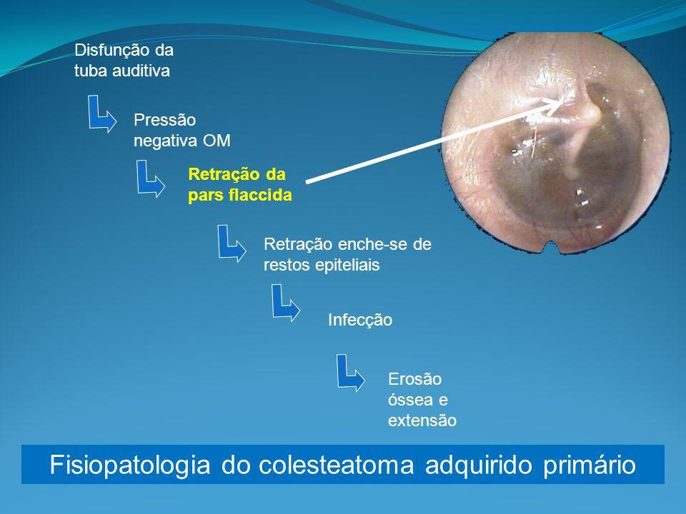 Fisiopatologia do colesteatoma adquirido primário