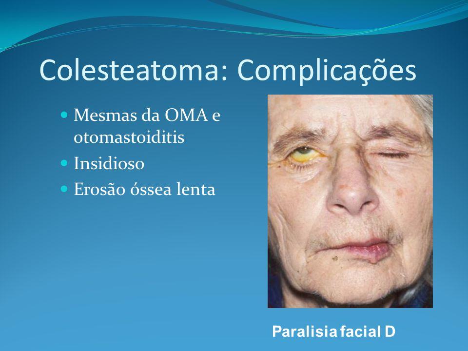 Colesteatoma: Complicações