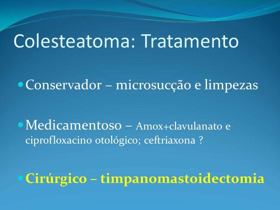 Colesteatoma: Tratamento