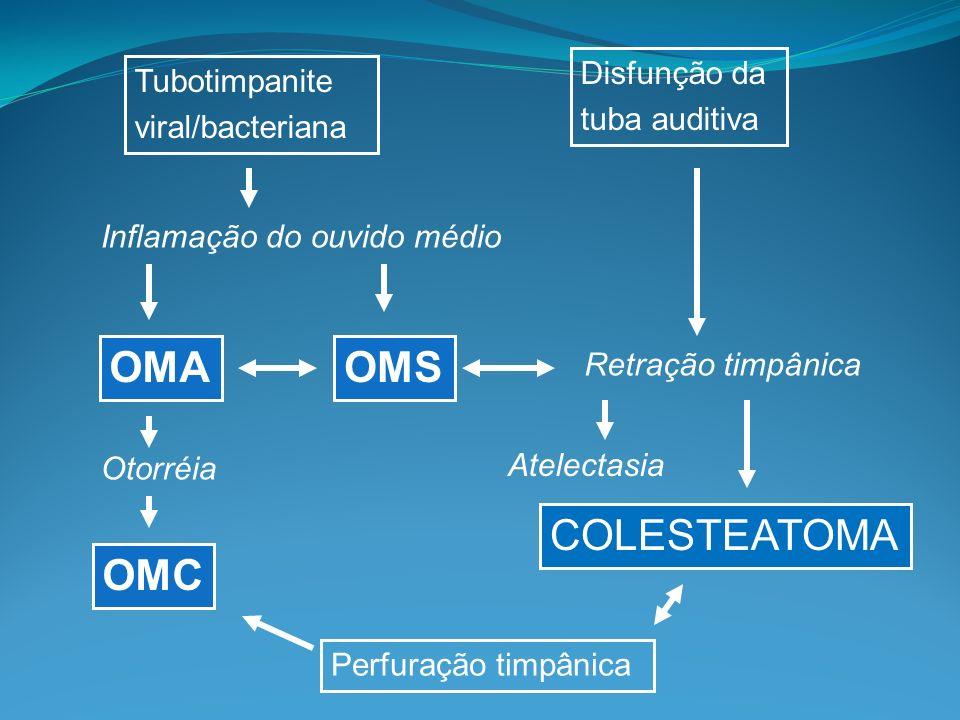 OMA OMS COLESTEATOMA OMC Disfunção da Tubotimpanite tuba auditiva