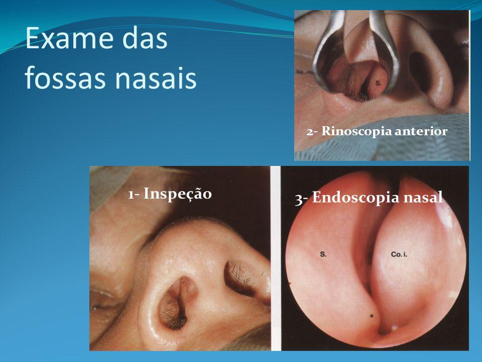 Exame das fossas nasais