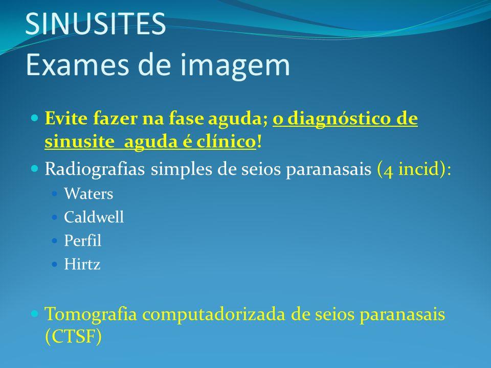 SINUSITES Exames de imagem