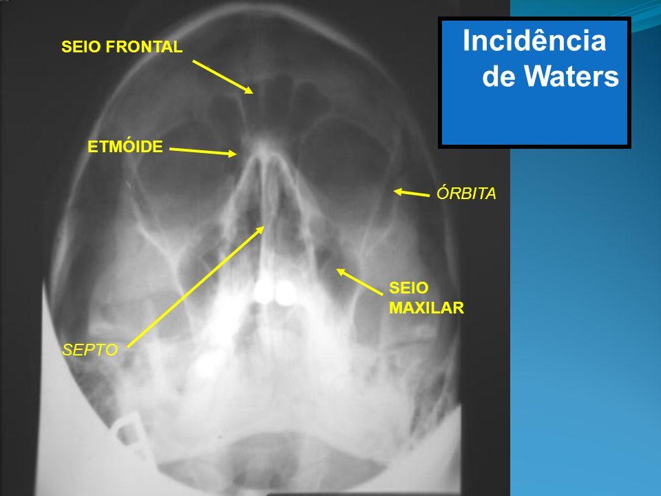 Incidência de Waters SEIO FRONTAL ETMÓIDE ÓRBITA SEIO MAXILAR SEPTO